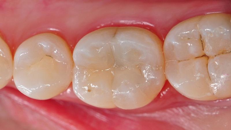 بهترین دندانپزشک اصفهان ترمیم های همرنگ دندان