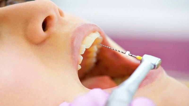 بهترین دندانپزشک اصفهان درمان ریشه