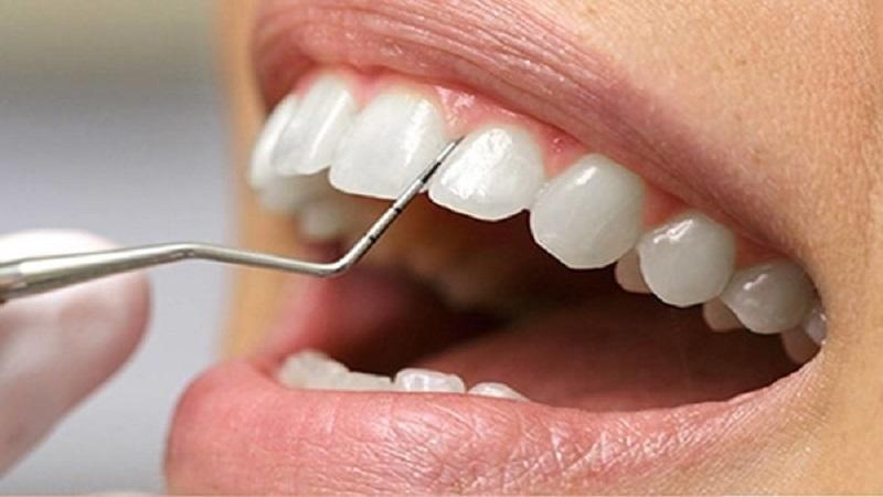بهترین دندانپزشک اصفهان اقدامهای اصلی برای کاهش تشکیل جرم و رسوب دندان