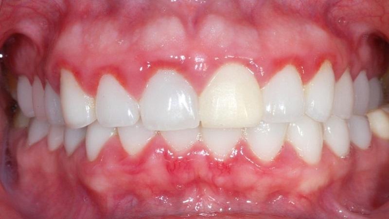 بهترین دندانپزشک اصفهان تغییر رنگ لثه نشانه (نکات مهم)