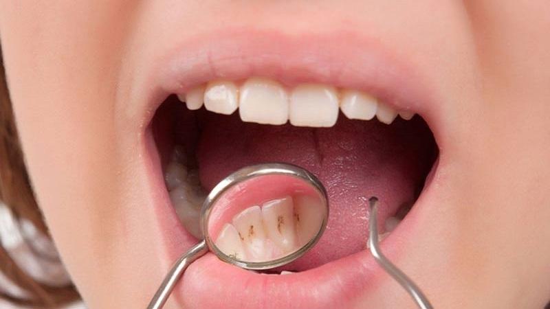 بهترین دندانپزشک اصفهان جرم دندان چیست؟