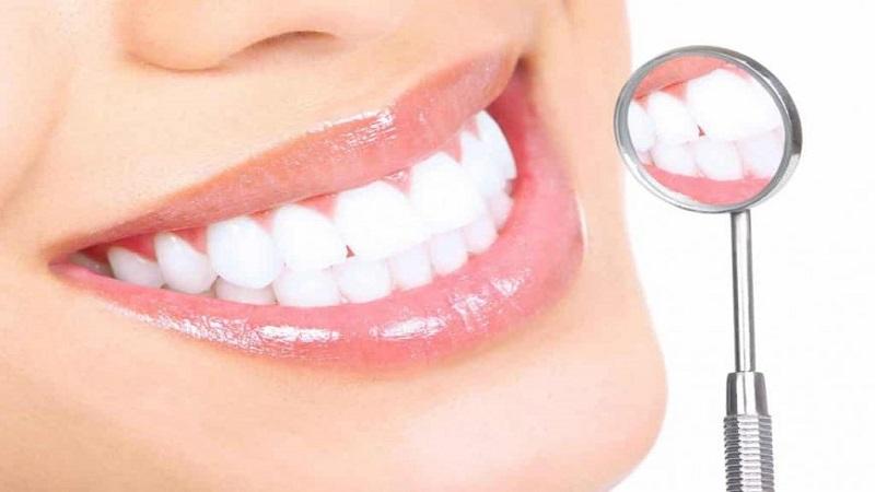 دوام بليچينگ يا سفيدكردن دندانها