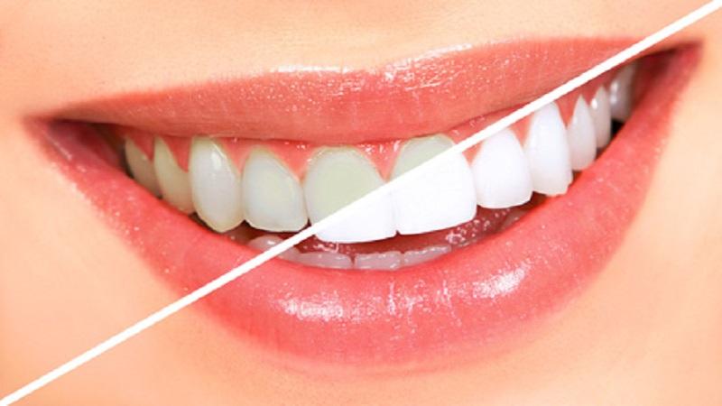 بهترین دندانپزشک اصفهان عملهای زیبایی دندانپزشکی