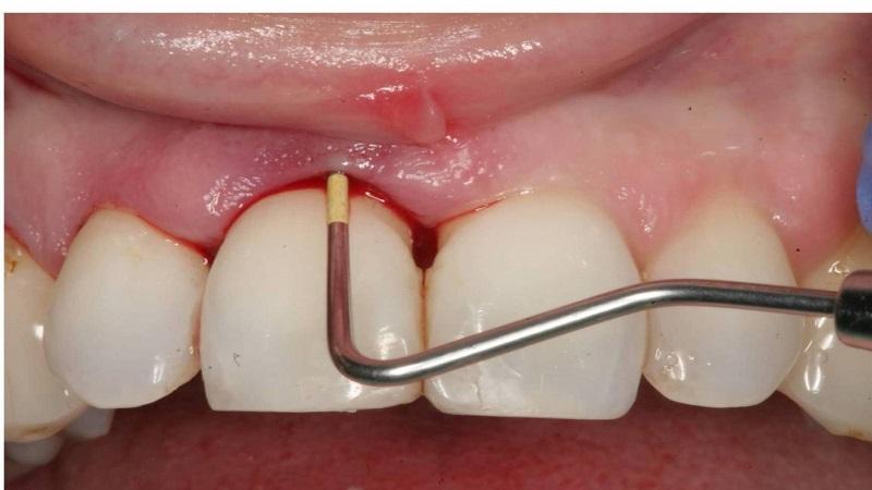 بهترین دندانپزشک اصفهان مراحل جرمگیری دندان