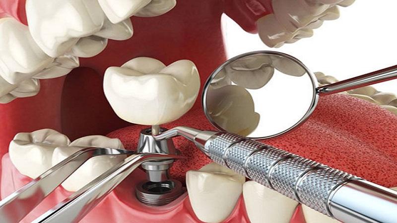 بهترین دندانپزشک اصفهان نکاتی که بعد از کاشت دندان باید بدانید!