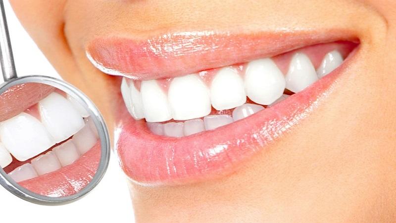 بهترین دندانپزشک اصفهان چه روشهايی براي بليچينگ دندانها وجود دارد؟