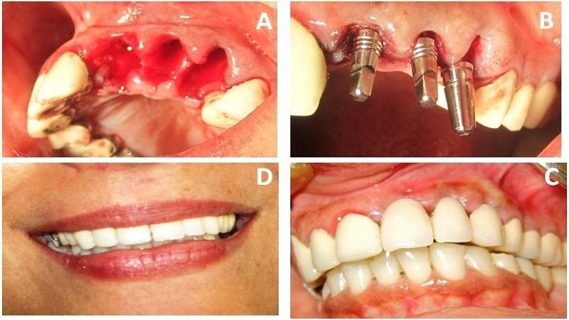 بهترین دندانپزشک اصفهان کاشت ایمپلنت بعداز کشیدن دندان