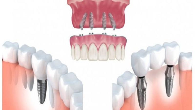 بهترین دندانپزشک اصفهان کاشت ایمپلنت فوری