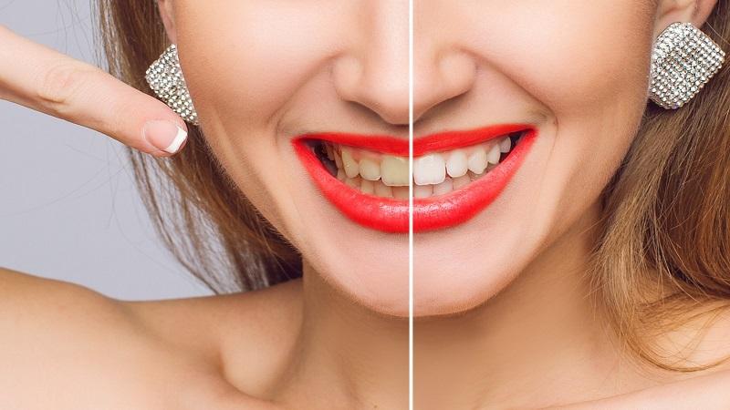 بهترین دندانپزشک اصفهان از جرم گیری و بروساژ بیشتر بدانید !