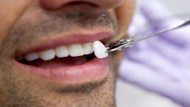 بهترین دندانپزشک اصفهان ونیر کامپوزیت