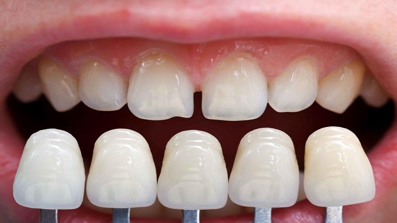 بهترین دندانپزشک اصفهان کاربرد لمینت دندان از زبان دکتر ندا مکانیک