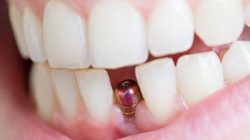 بهترین دندانپزشک اصفهان چگونه لق شدن ایمپلنت را به درستی تشخیص بدهیم؟