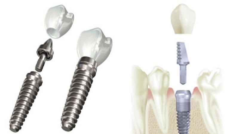 بهترین دندانپزشک اصفهان درمان های احتمالی برای لق شدن ایمپلنت