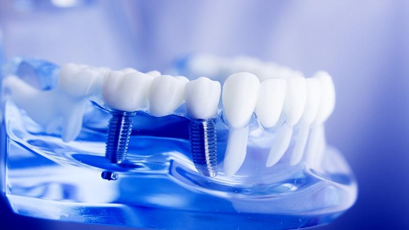 بهترین دندانپزشک اصفهان جلوگیری از لق شدن ایمپلنت