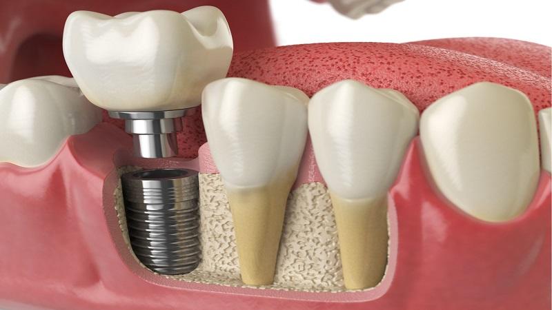 بهترین دندانپزشک اصفهان چه تفاوتی میان بریج و ایمپلنت وجود دارد ؟