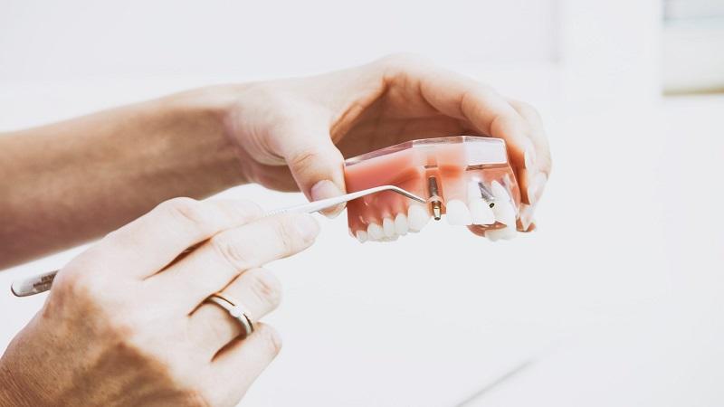 بهترین دندانپزشک اصفهان چگونگی کاشت دندان بدون استفاده از کاشت ایمپلنت