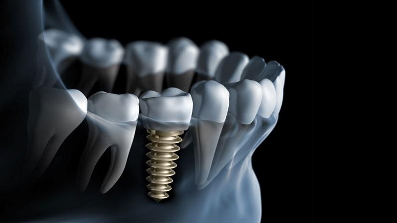 بهترین دندانپزشک اصفهان 7 نکته مهم در رابطه با کاشت دندان و ایمپلنت