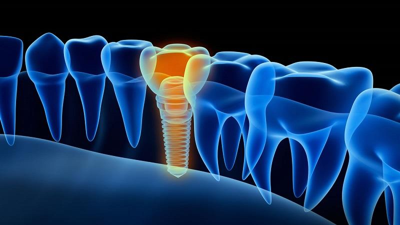 بهترین دندانپزشک اصفهان تحت چه شرایطی کاشت دندان با ایمپلنت انجام می شود ؟