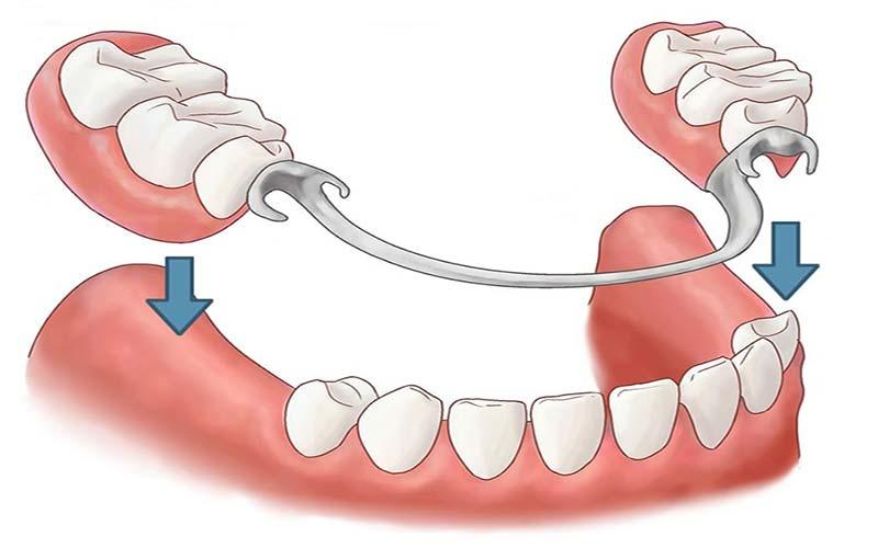 بهترین دندانپزشک اصفهان روش کاشت دندان مصنوعی جزئی قابل برداشتن