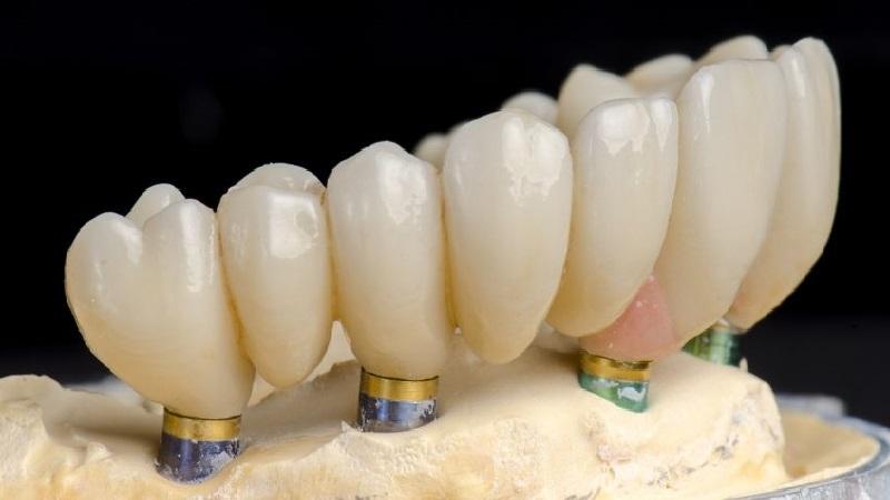 بهترین دندانپزشک اصفهان مزیت های ایمپلنت کامل دندان