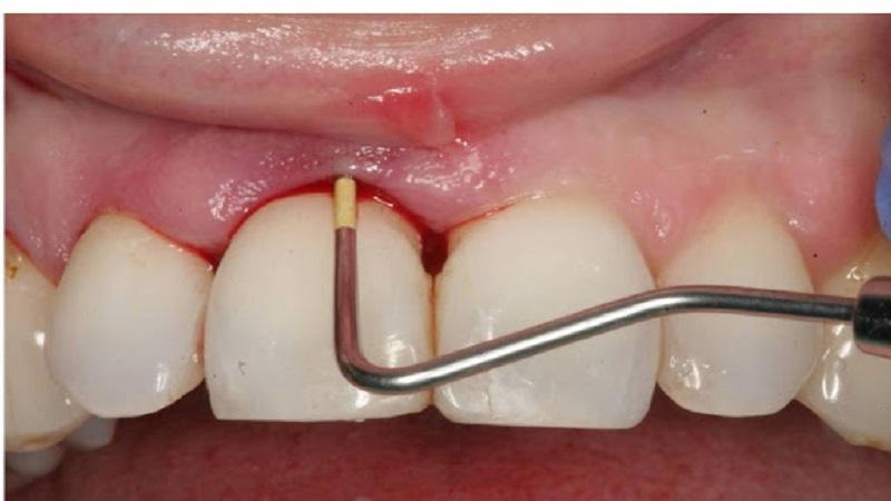 هزینه جرم گیری دندان