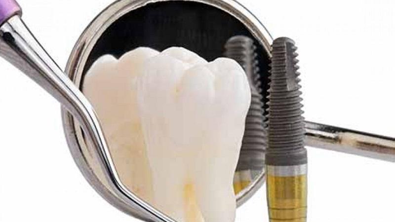نگهداری ایمپلنت دندان