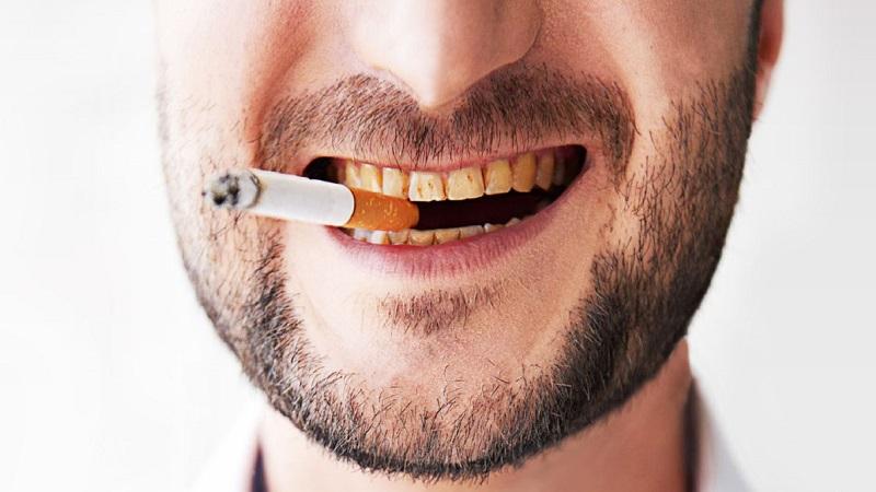 ایمپلنت برای افراد سیگاری چگونه است؟