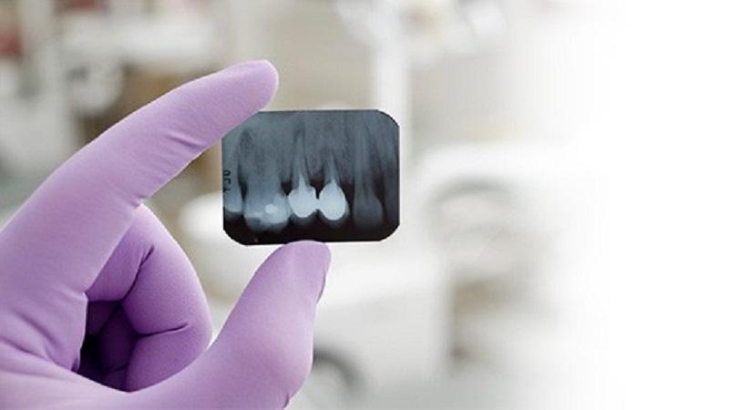ایمپلنت دندان دائمی