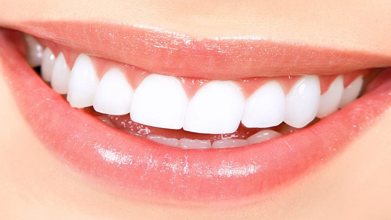 روش انجام لامینت دندان
