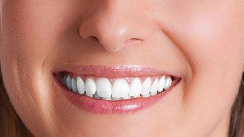 کاندیدای بلیچینگ دندان