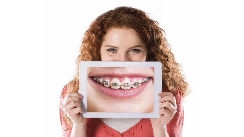 بهترین ایمپلنت اصفهان   چرا با داشتن درمان ارتودنسی دندان نباید سیگار کشید ؟