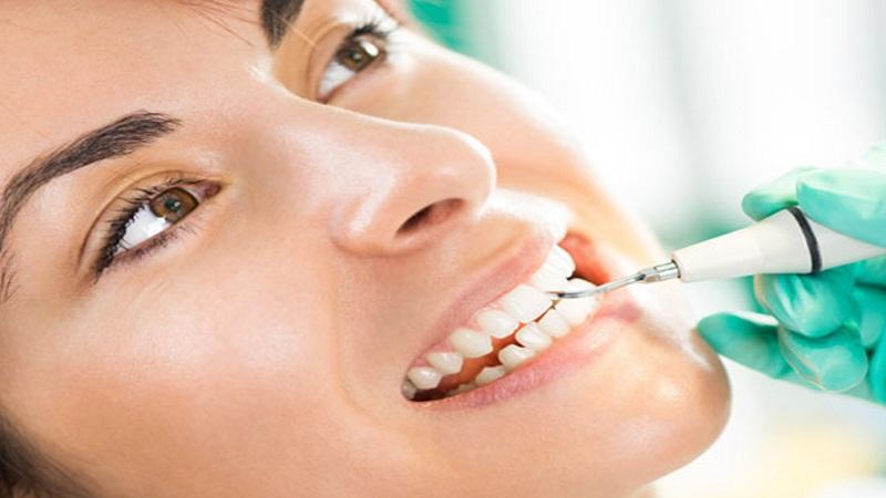 بهترین ایمپلنت اصفهان |چه کسانی می توانند از ونیر دندان استفاده کنند ؟
