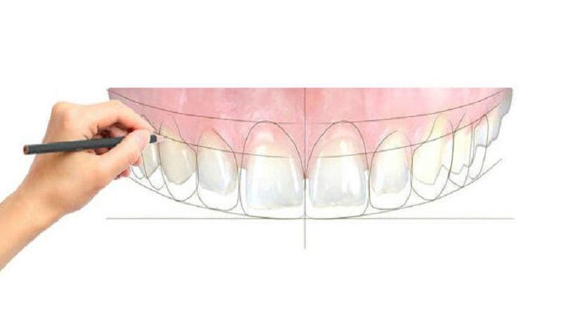 بهترین دندانپزشک اصفهان | اصلاح نواقص با استفاده از طراحی لبخند