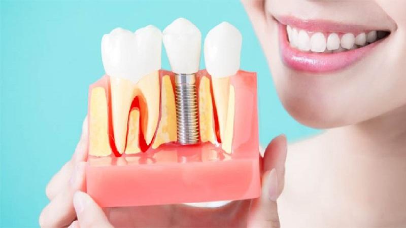 بهترین ایمپلنت اصفهان | ایمپلنت های دندانی