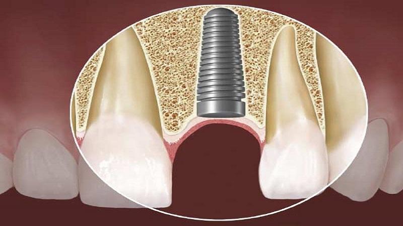 بهترین دندانپزشک اصفهان | ایمپلنت گذاری برای افراد مبتلا به دیابت