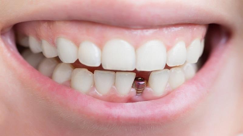 بهترین دندانپزشک اصفهان |بهترین و بدترین کاندیدای کاشت ایمپلنت دندان