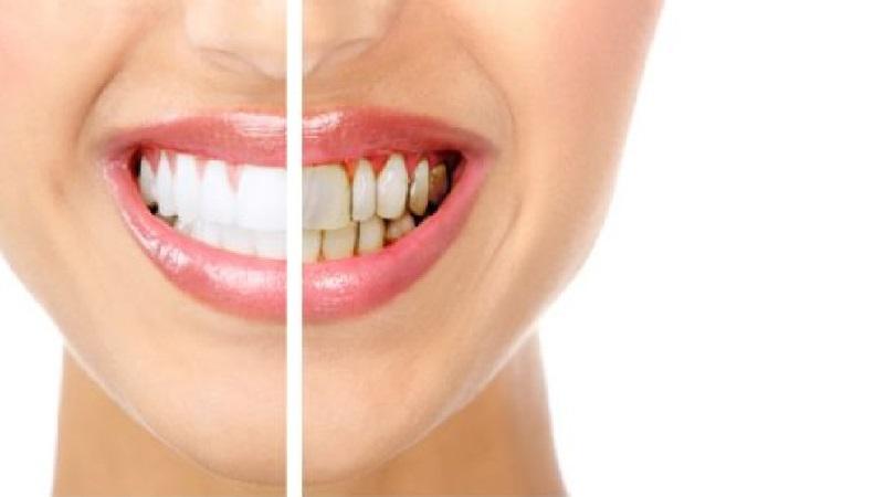 بهترین ایمپلنت اصفهان | وجه تمایز لمینت دندان و بلیچینگ