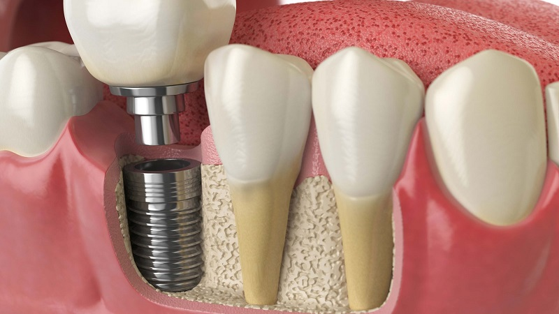 بهترین ایمپلنت اصفهان | کاشت ایمپلنت دندان