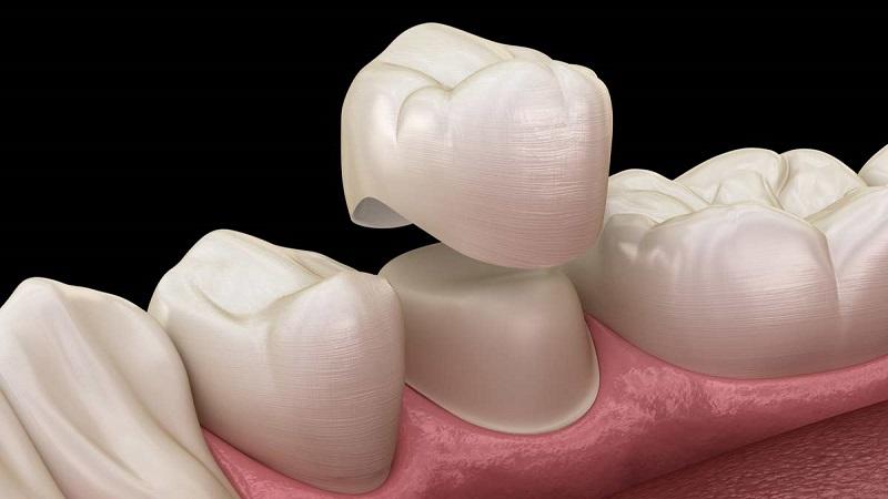 بهترین دندانپزشک اصفهان | بازسازی دندان عصب کشی شده با استفاده از روکش دندان