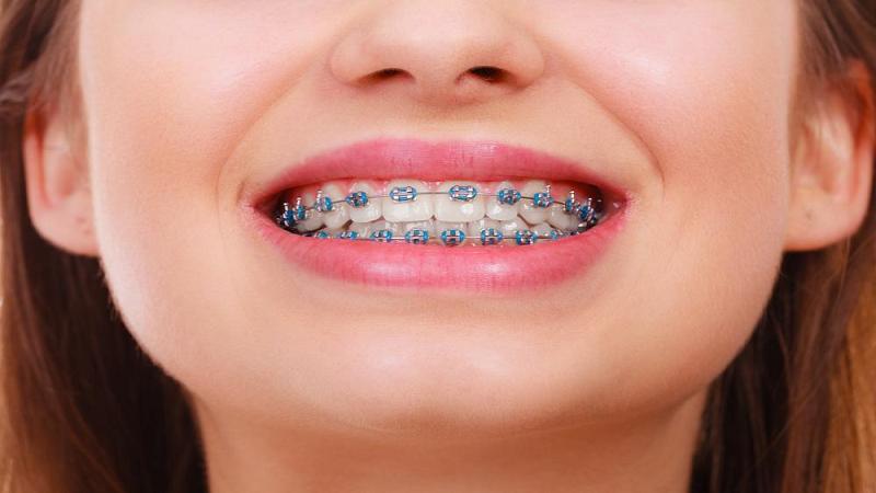 بهترین ایمپلنت اصفهان   تاثیر سیگار بر ارتودنسی دندان