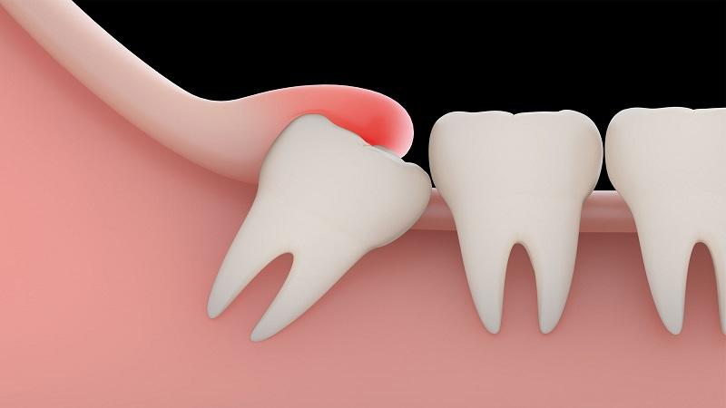 بهترین دندانپزشک اصفهان | دندان عقل