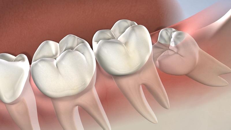 بهترین دندانپزشک اصفهان | بهترین زمان برای کشیدن دندان عقل
