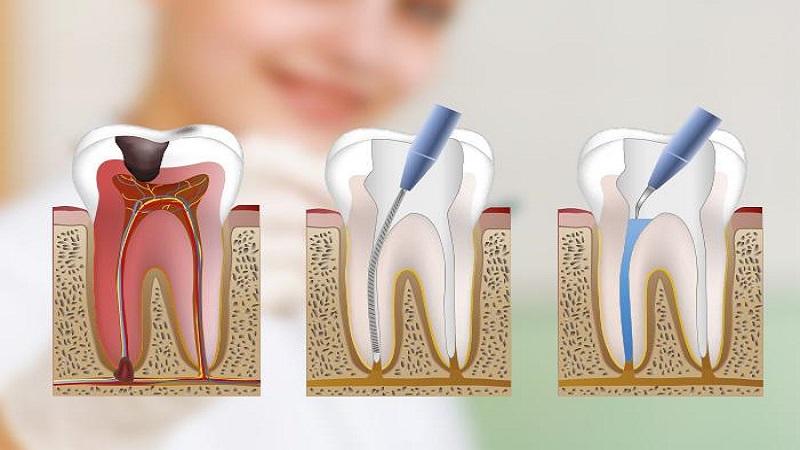 بهترین ایمپلنت اصفهان  | روت کانال دندان چه عوارض و خطراتی در پی دارد ؟