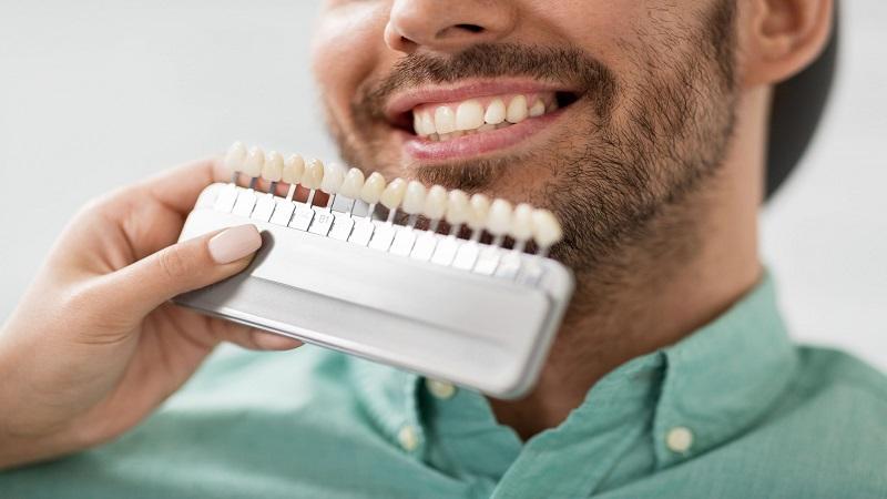 بهترین ایمپلنت اصفهان | روکش کامپوزیت دندان