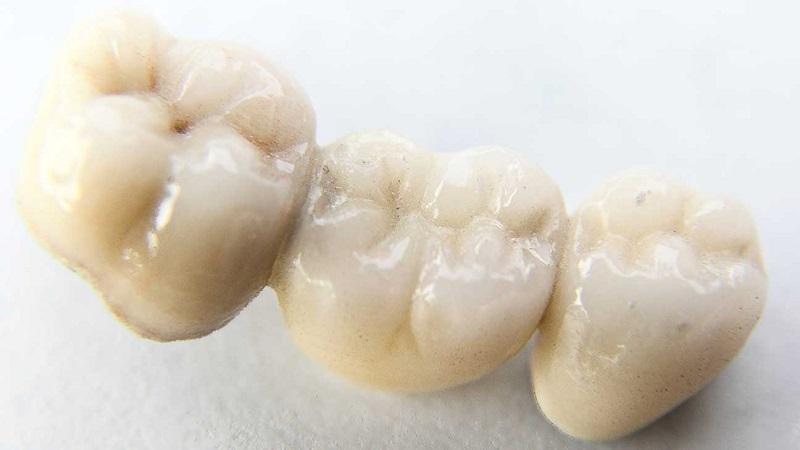 بهترین ایمپلنت اصفهان | مواد سازنده بریج دندان
