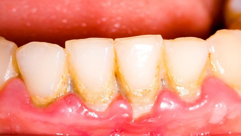 بهترین دندانپزشک اصفهان | پلاک دندان چگونه به وجود می آید ؟