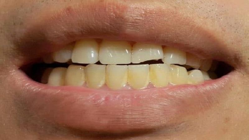 بهترین دندانپزشک اصفهان |  پلاک دندان