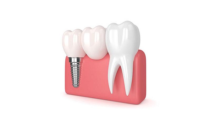 بهترین ایمپلنت اصفهان   چه دلایلی باعث درد ایمپلنت دندان می شوند ؟
