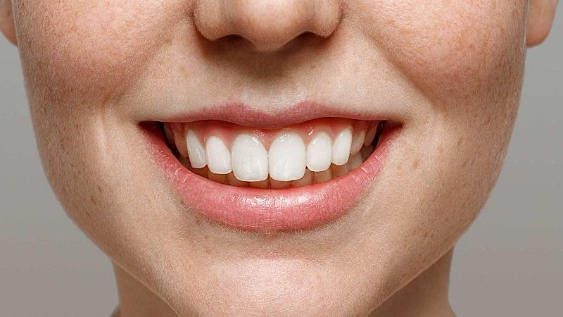 بهترین دندانپزشک اصفهان   7 راه برای تقویت مینا دندان
