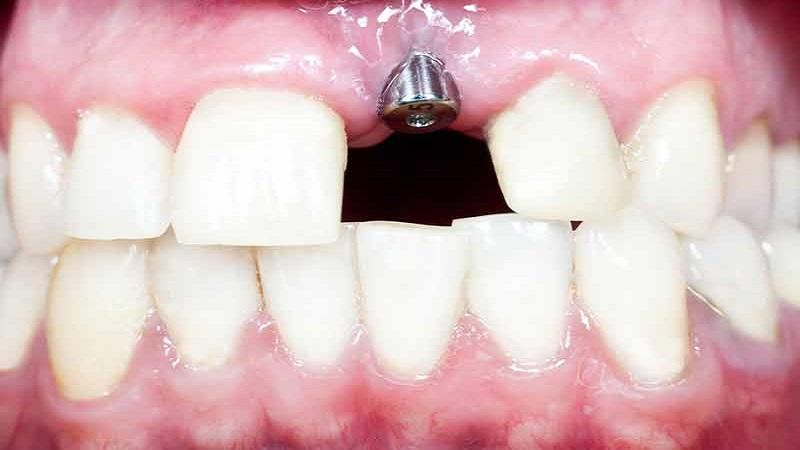 ایمپلنت دندان نیش | بهترین ایمپلنت اصفهان